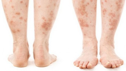 PSORIASIS CAN GET RID OF NATURAL MEDICINE