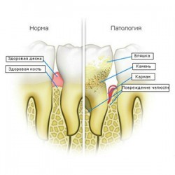 PERIODONTITIS THREATENS NOT ONLY THE LOSS OF TEETH AND DEFEAT OF INTERNAL ORGANS