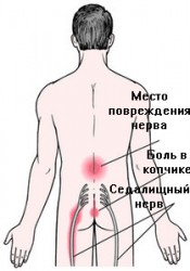 SORE LOWER BACK - HELP YOURSELF