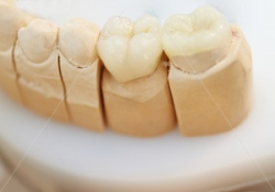 Zirconium is a miracle of modern dentistry
