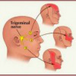 TRIGEMINAL NERVE CAN BECOME INFLAMED NO APPARENT REASON