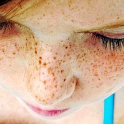 WITH FRECKLES BEGIN TO DEAL IN ADVANCE